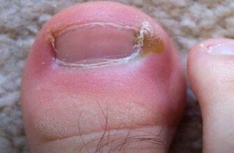 Методы лечения вросшего ногтя