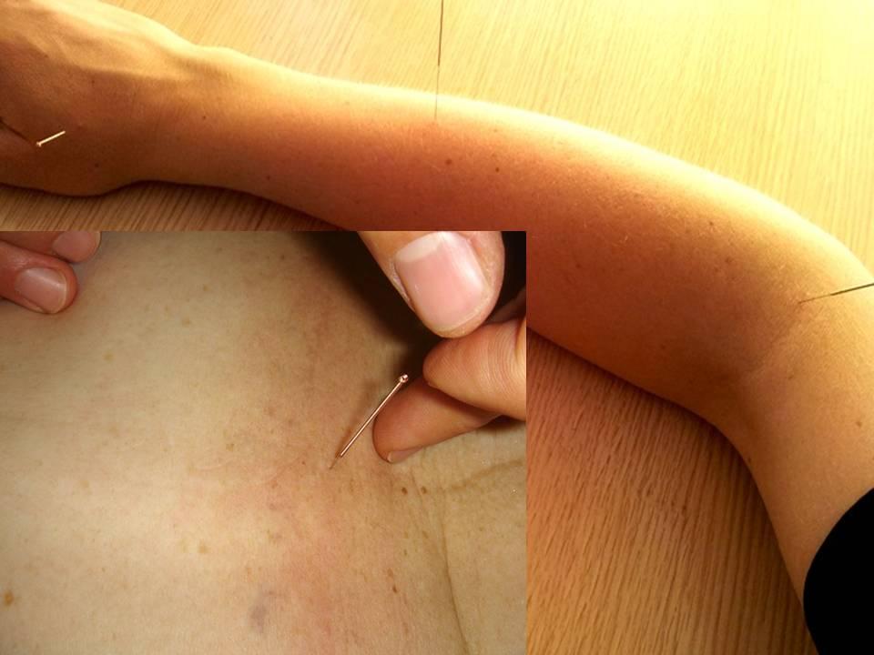 Лечение суставов китайской медициной