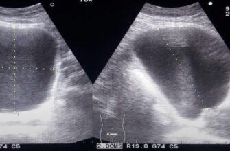Чем опасен цистит при беременности