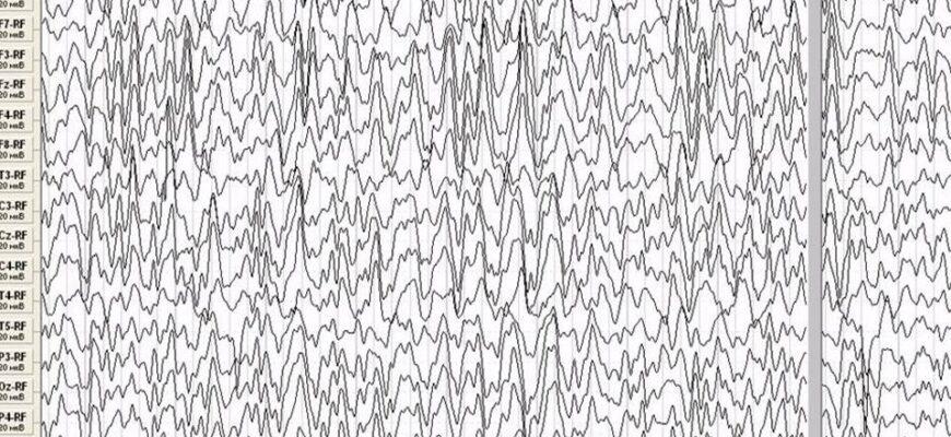 Что делать в случае приступа эпилепсии