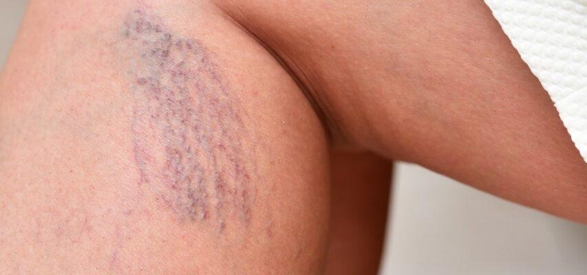Лечение венозной сетки на ногах