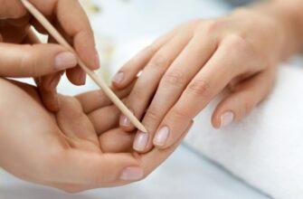 Почему появляются заусенцы на пальцах рук