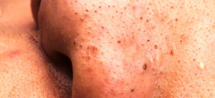 Причина появления черных точек на лице