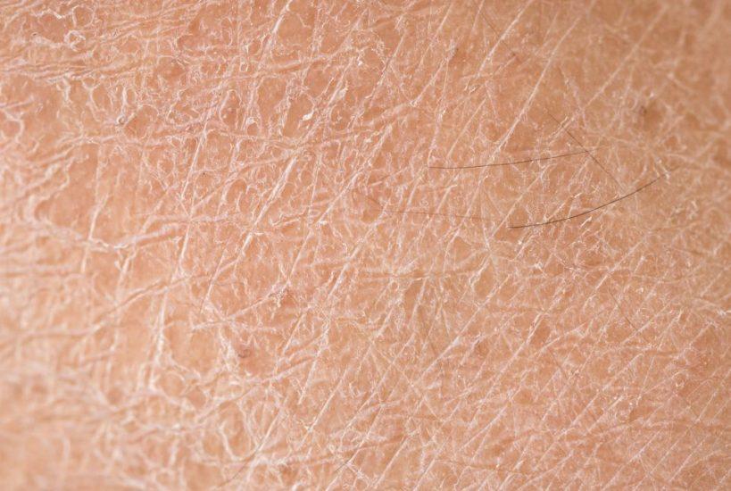 Солевой пилинг для сухой кожи